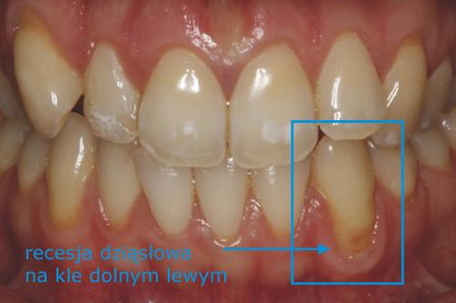 Zdjęcie przedstawiające recesję dziąsłową i odsłoniętą szyjkę zęba nr 33 - recesje dziąsłowe