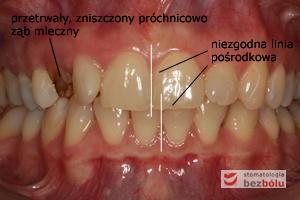 Status zębowy wyjściowy