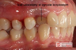 Strona prawa w zwarciu - przerwy między zębami niezbędne do przesunięć
