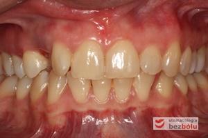 Łuk zębowy górny i dolny w zwarciu - widoczna luka po usuniętym mleczaku
