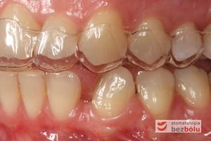 Pierwszy pozycjoner na zębach górnych - strona lewa