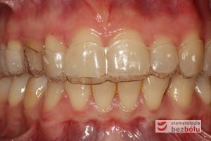 Łuk zębowy górny i dolny w zwarciu z założonym pozycjonerem