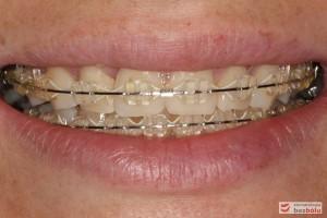 Ocena brzegów siecznych w uśmiechu względem wargi dolnej