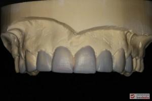 Wizualizacja docelowej odbudowy protetycznej - wax-up