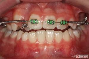 Widok zębów w trakcie leczenia