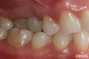 I klasa kłowa i Angle'a - zgryz krzyżowy częściowo boczny, zęby sektora bocznego żuchwy przechylone dojęzykowo