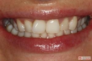 Diagnostyka – nieregularna linia dziąsła, proporcje zębów ~85%