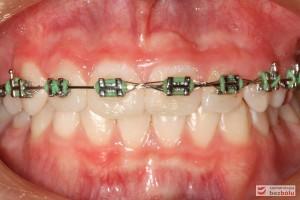 Zęby w zwarciu tuż przed demontażem aparatu