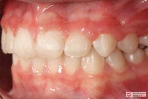 Widok zębów w zwarciu - strona lewa po leczeniu