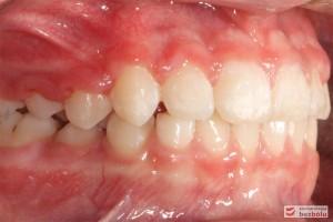 Widok zębów w zwarciu po stronie lewej po leczeniu