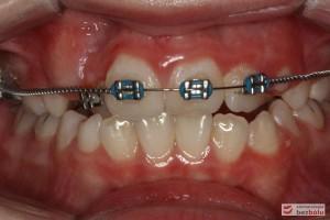 Widok zębów w dniu założeniu aparatu