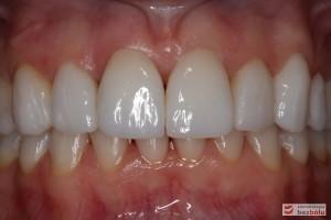 Ostateczne licówki caoceramiczne osadzone na zębach w odcinku przednim