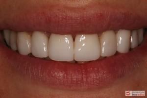 Pozytywna przemiana uśmiechu - obraz kliniczny po terapii stomatologicznej