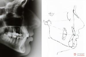 Analiza profilu twarzy wg Ricketts'a, prawidłowa pozycja szczęki i dotylna pozycja żuchwy względem czaszki, siekacz zbyt wychylony