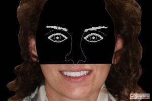 Analiza uśmiechu po zacementowaniu pracy ostatecznej - en face