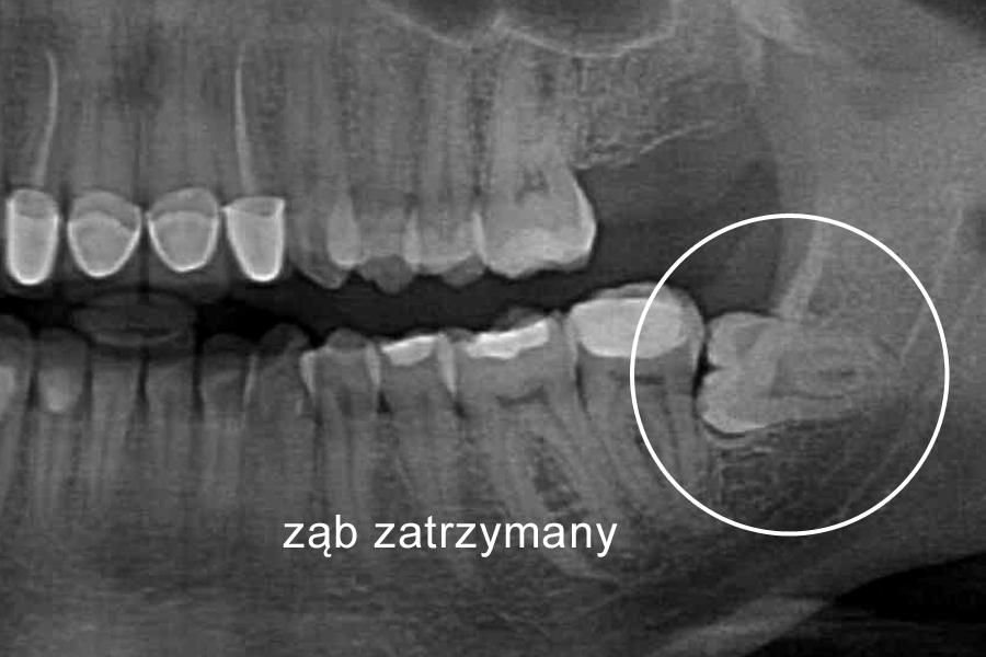Ząb zatrzymany - warto wiedzieć