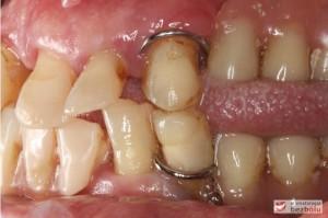 Starte, znoszone, osiadające protezy zębowe - widok po stronie lewej