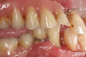 Starte, znoszone, osiadające protezy zębowe - widok po stronie prawej