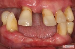 Stan wyjściowy - bez protez, liczne braki zębowe i po 2 nierokujące zęby w szczęce i żuchwie