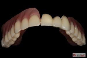 """Odbudowa protetyczna szczęki - wykonana z kompozytu w wygodnym kształcie - tzw. """"U-shape"""""""