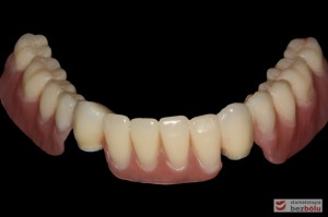 Odbudowa protetyczna żuchwy - wykonana przy użyciu zębów Michał Anioł Integrale