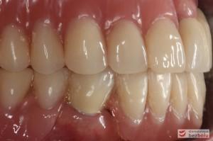 Ostateczny efekt terapeutyczny - zadowolona i uśmiechnięta pacjentka
