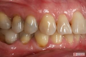 Przebarwienia zębów w strefach bocznych - sięgały zębiny i pomimo nowych wypełnień zachowały szary odcień