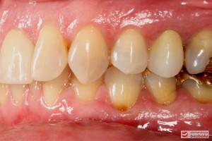 Przebarwienia zębów w strefach bocznych - sięgały zębiny i pomimo nowych wypełnień zachowały szary odcień - strona lewa