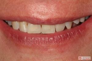 Radosny uśmiech pacjentki