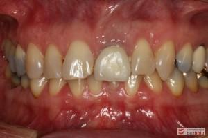 Zęby górne i dolne w zwarciu - liczne dyskoloracje i asymetria siekaczy centralnych w szczęce