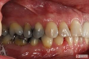 Powierzchnie wargowe zębów w zgryzie - widoczna ciemnoszara barwa przedtrzonowców i trzonowców - strona prawa