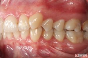 Warunki zgryzowe po stronie lewej przed leczeniem