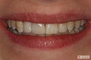 Uśmiech pacjentki po zakończonym leczeniu