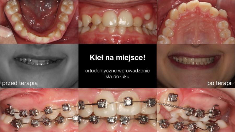 KP_intro_900