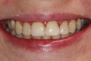 Uśmiech pacjentki po leczeniu