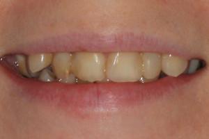 Uśmiech pacjentki przed leczeniem