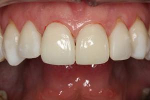 Ostateczna praca w jamie ustnej - licówka i korona siekaczy centralnych in situ