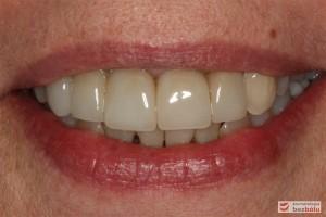 Efekt końcowy leczenia - nowe zęby w uśmiechu