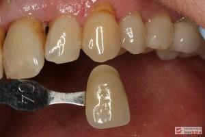 Dobór koloru dla nowych zębów - dobór koloru w odniesieniu do górnego kła po lewej stronie