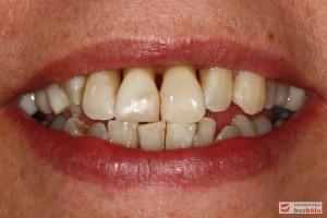 Usta w średnim uśmiechu - trójkątne przestrzenie między zębami w szczęce
