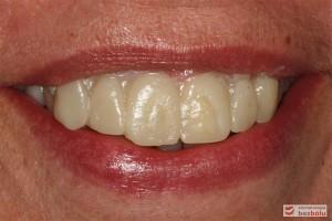 Wizualizacja odbudowy protetycznej - pierwsza przymiarka mock-up w ustach pacjentki