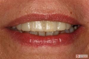 Skorygowany mock-up w uśmiechu - ocena ekspozycji siekaczy