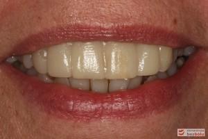 Mock-up w średnim uśmiechu - ocena stosunku brzegów siecznych do wargi dolnej