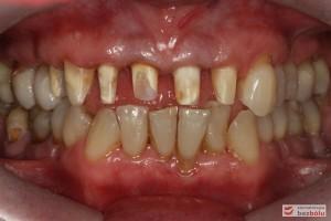 Oba łuki w zgryzie - widok frontalny, opracowane filary protetyczne na zębach własnych w szczęce