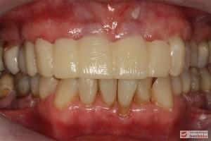 Mock-up w ustach - zęby w zwarciu, kompozytowa wizualizacja przyszłej rekonstrukcji w łuku górnym