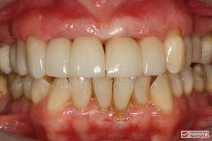 Oba łuki w zgryzie - przymiarka ostatecznej odbudowy protetycznej w jamie ustnej