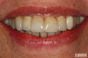 Usta w uśmiechu pełnym - ocena stosunku brzegów siecznych do wargi dolnej