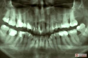 Kontrola radiologiczna - liczne zęby z niekompletną endodoncją, ubytek kości w szczęce