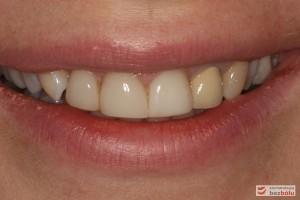 Pełny uśmiech pacjentki - niespójny kolor dwójki z pozostałymi zębami