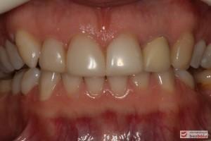 Zęby w zwarciu - widok frontalny, kieł prawy nie osiąga płaszczyzny okluzyjnej, nieregularna linia dziąsłowa
